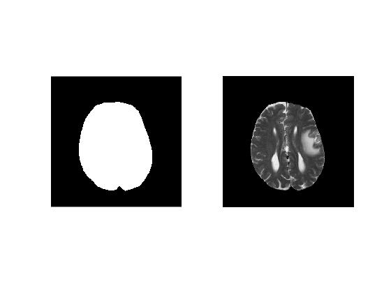 Masks and Region Of Interests (ROIs) · MATLAB for MRI